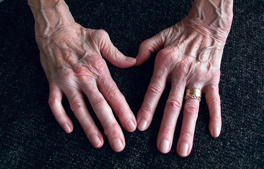 Can Cbd Oil Treat Rheumatoid Arthritis Symptoms Kindhealth