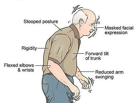 signs Parkinson Disease